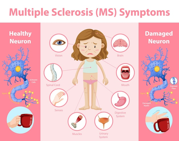 Infographic over multiple sclerose (ms) symptomen