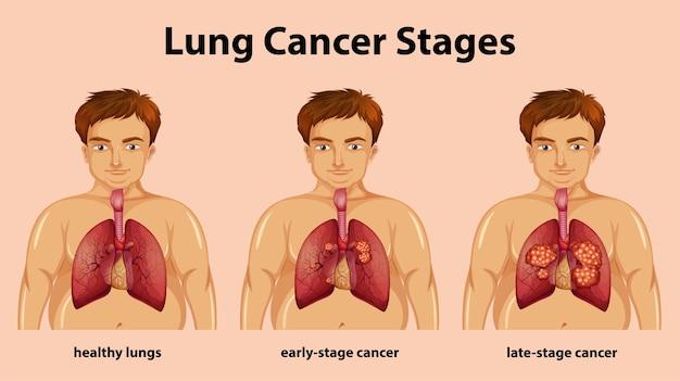 Informatieve illustratie van longkankerstadia