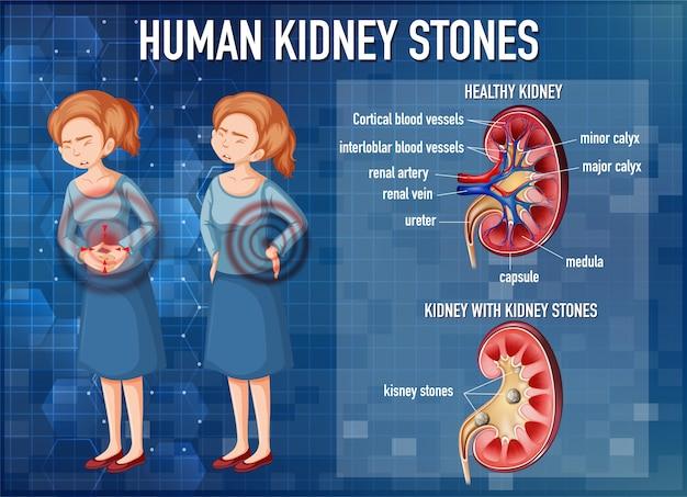 Informatieve illustratie van nierstenen