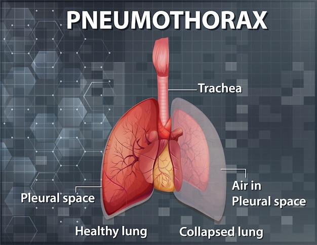 Informatieve illustratie van pneumothorax