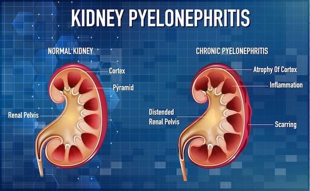 Informatieve illustratie van pyelonefritis