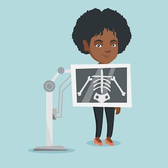 Jonge afrikaanse vrouw tijdens x ray procedure.