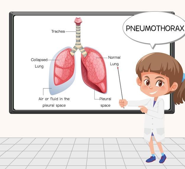 Jonge wetenschapper legt pneumothorax uit voor een bord in laboratorium