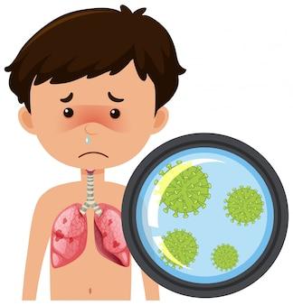 Jongen met coronavirus in zijn longen