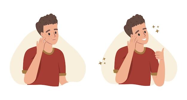 Jongen met verschillende huidaandoeningen acne puistjes mee-eters en gezonde huid vectorillustratie