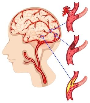 Kanker in het menselijk brein