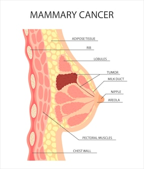 Kanker van de vrouwelijke borst een tumor of groei in de menselijke borst