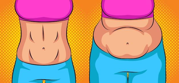 Kleur vectorillustratie van een vrouwelijke buik. buik van een slanke vrouw. overgewicht vrouw buik