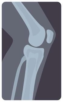 Laterale röntgenfoto van menselijk kniegewricht