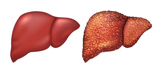 Lever van gezond persoon. leverpatiënten met hepatitis. lever is ziek persoon. levercirrose. repercussie alcoholisme