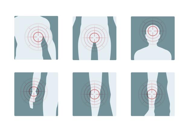 Lichaamspijn. concentrische rode ringen van pijnlijke menselijke delen pijnstillende vectorconceptenbeelden