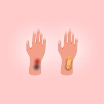 Lichamelijk letsel menselijke hand met open snede. medische zelfklevende pleister op roze achtergrond. plat lag stijl.
