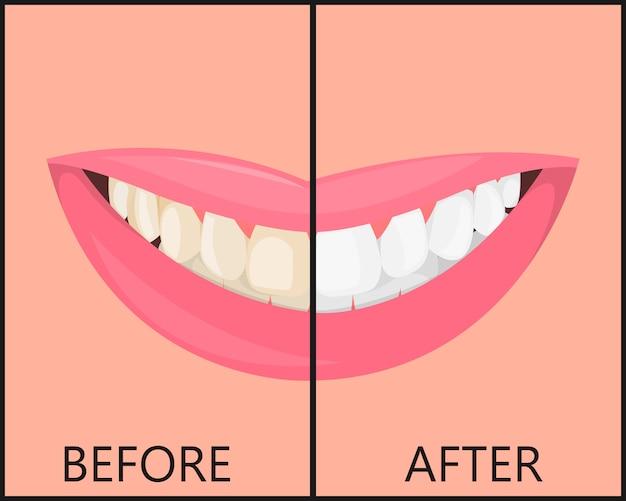Lippen meisje met een mooie sneeuw glimlach en tanden, mond is geïsoleerd. medische stomatologische.