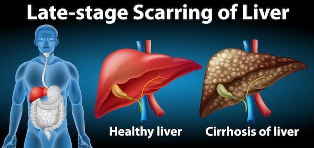 Littekenvorming in de lever in een laat stadium