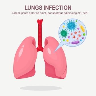 Longen met luchtweginfectie. bacteriën, microben, ziektekiemen in menselijke organen.