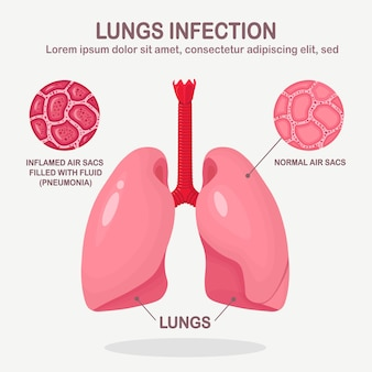 Longen met luchtweginfectie geïsoleerd op een witte achtergrond. longontsteking, tuberculose, kankerconcept. normale en ontstoken luchtzakjes gevuld met vloeistof. cartoon ontwerp