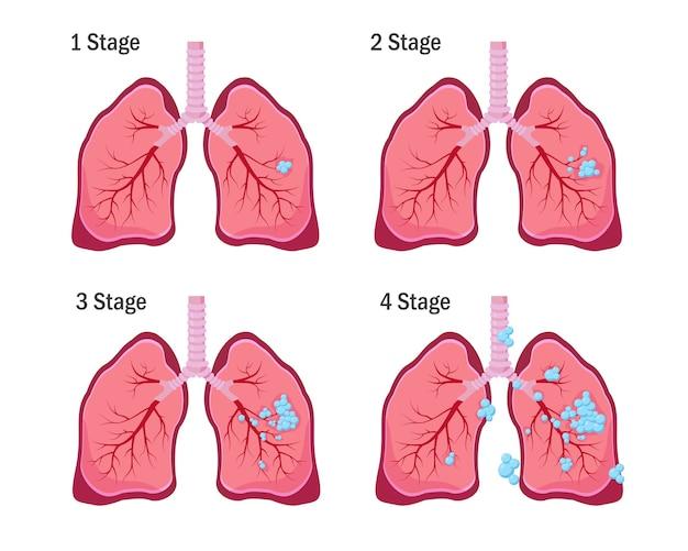 Longkanker concept. vier stadia van longkankerziekte.