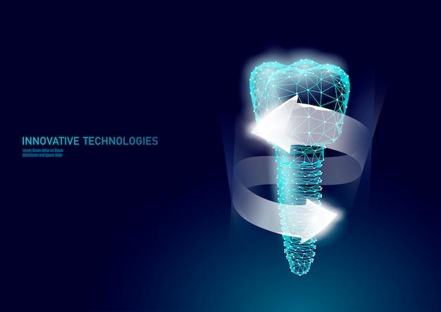 Maaltand tandheelkundig implantaat 3d laag poly geometrisch model.
