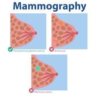 Mammografie resultaten medisch onderzoek normale borstkanker cyste