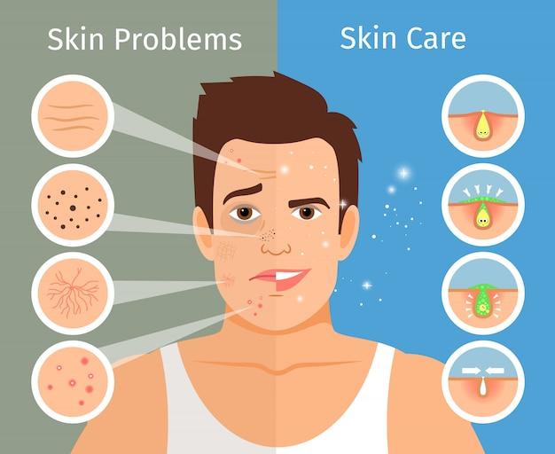 Mannelijke gezicht huid behandeling vectorillustratie. jongemanportret met mooie en verontruste gezichtshuiden