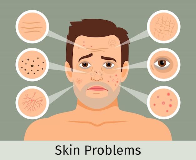 Mannelijke gezichtshuid problemen vectorillustratie. acne en donkere vlekken, rimpels en kringen onder de ogen