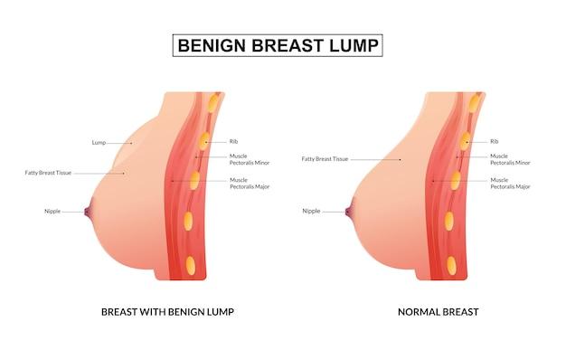 Medisch onderwijsoverzicht van goedaardige borstknobbels
