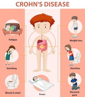 Medische infographic van de ziekte van crohn