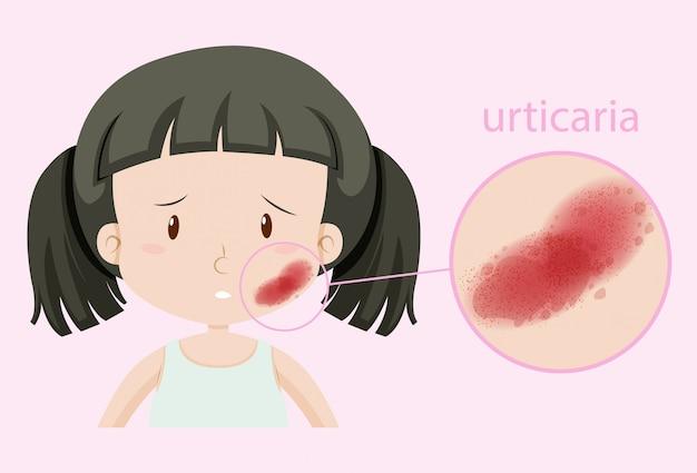 Meisje met urticaria op haar gezicht