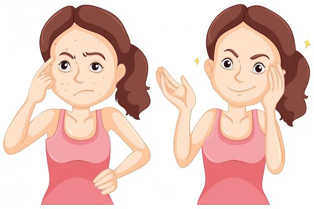 Meisje voor en na het hebben van puistjes op haar gezicht