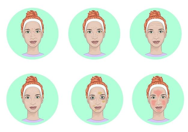 Meisjesgezicht met huidproblemen. vaak voorkomende problemen met de huid van het gezicht
