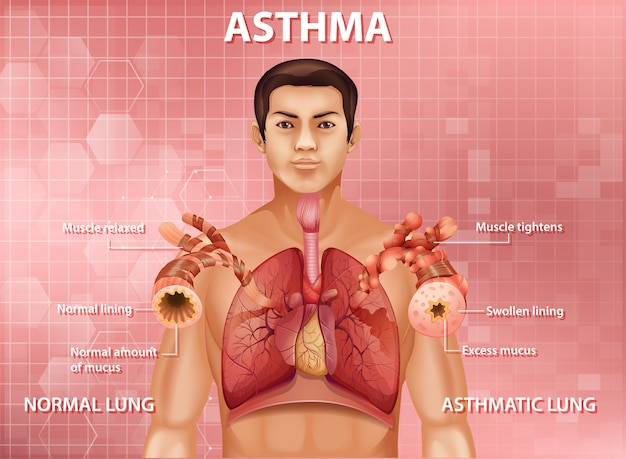 Menselijke anatomie astma-diagram