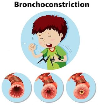 Menselijke anatomie bronchoconstrictie op witte achtergrond