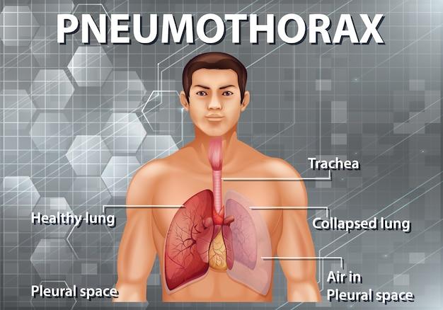 Menselijke anatomie pneumothorax diagram