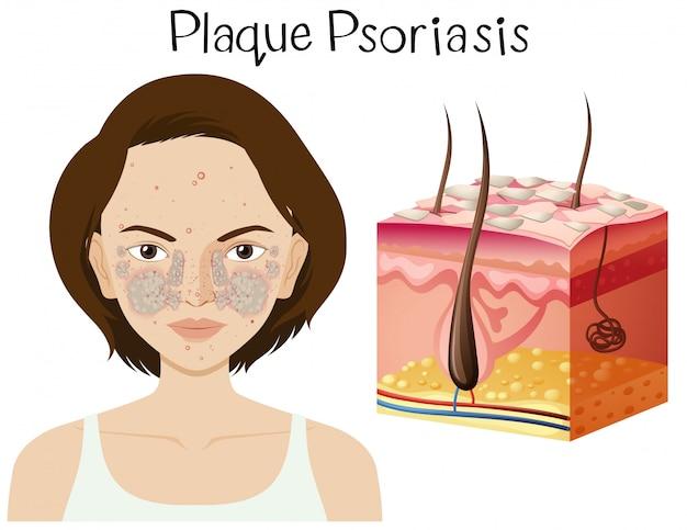 Menselijke anatomie van plaque psoriasis