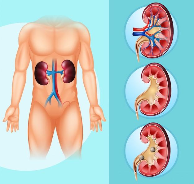 Menselijke en nierstenen