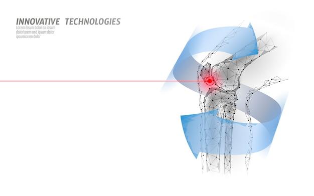 Menselijke kniegewricht 3d-model vectorillustratie. laag poly design toekomst