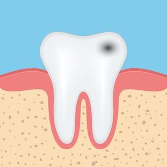 Menselijke tand met cariës, tandgezondheidsprobleem.