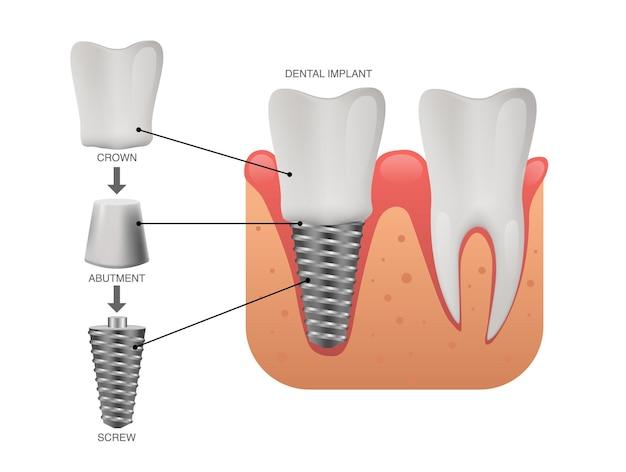Menselijke tanden en tandheelkundig implantaat