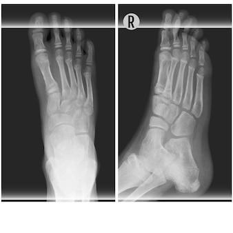 Menselijke voet ankel en been xray vectorillustratie. boven en rechts