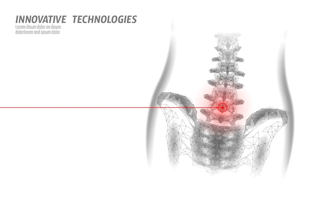 Menselijke wervelkolom heup lumbale radiculitis pijn laag poly.