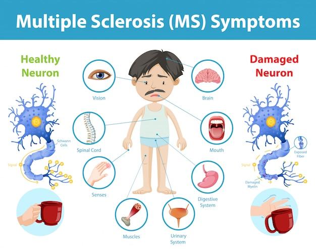 Multiple sclerose (ms) symptomen informatie infographic
