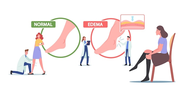 Oedeem, lymfoedeem ziekte concept. kleine dokter en patiëntkarakters op enorme infographics die gezonde en zieke benen presenteren, vrouw draagt compressiekousen. cartoon mensen vectorillustratie