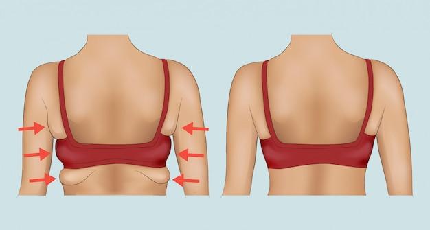 Oksels vet voor en na een dieet of een operatie