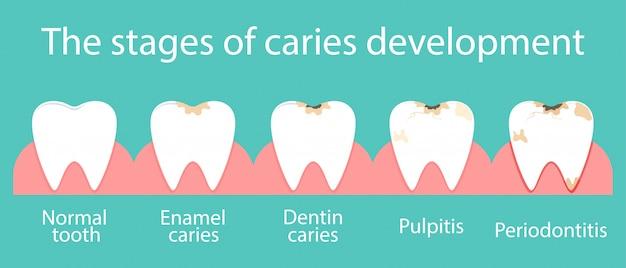 Ontwikkeling van cariës in de mondholte.
