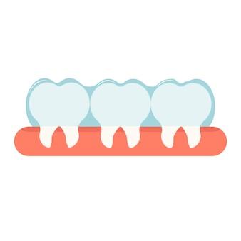 Onzichtbare beugels voor correctie van orale tanden orthodontisch stomatologieconcept