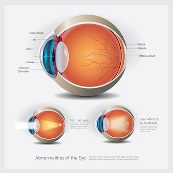 Ooganatomie met oogafwijkingen