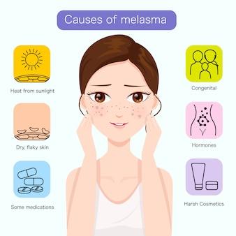 Oorzaken van melasma op het gezicht