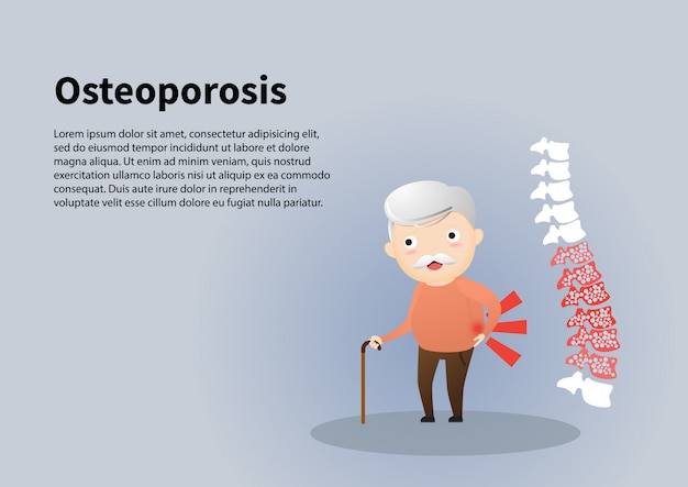 Oude man met osteoporose illustratie.