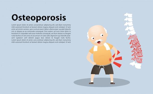 Oude man met osteoporose. vector, illustratie.