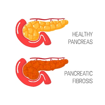 Pancreas fibrose concept in cartoon-stijl.